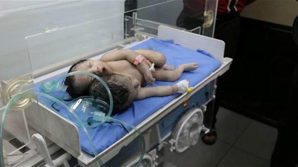 ولادة نادرة لطفل برأسين في ذي قار جنوب العراق/ هي الأولى في العراق والسابعة في العالم
